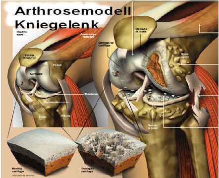 arthrose Knie Modelldarstellung