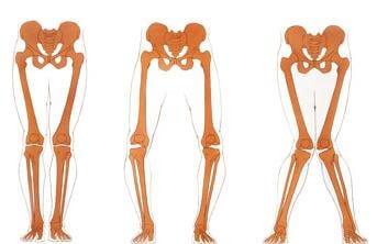 o Bein und X Bein